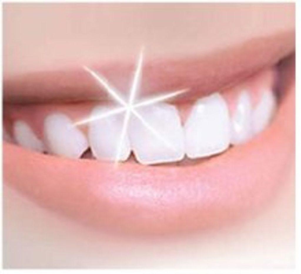 Какие бывают украшения для зубов?
