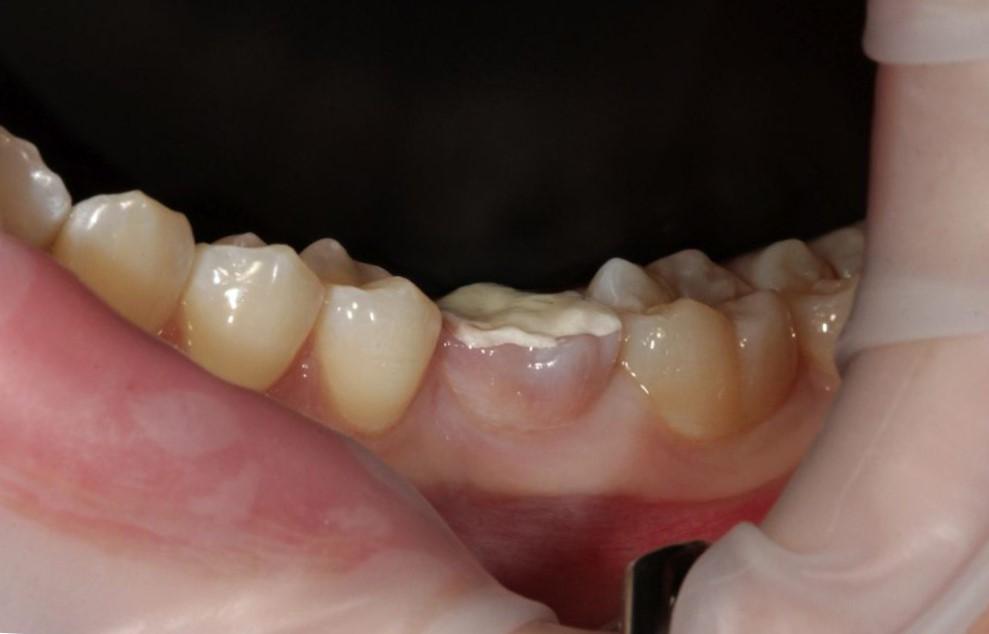 Зуб с лекарством
