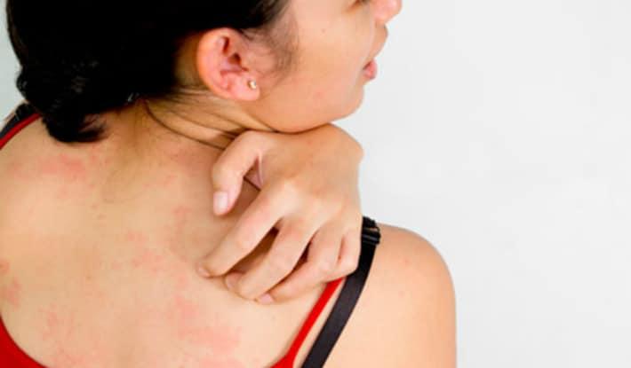 Аллергия на масло чайного дерева