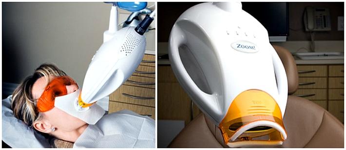 Отбеливание зубов методом Zoom