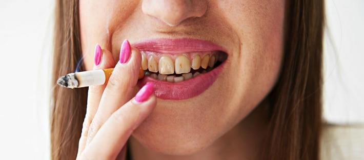 Курение и желтый налет на зубах