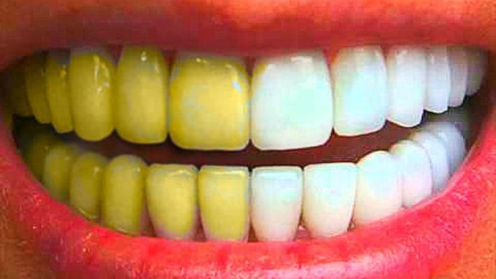 Профессиональное отбеливание зубов: Домашнее отбеливание и Офисное отбеливание