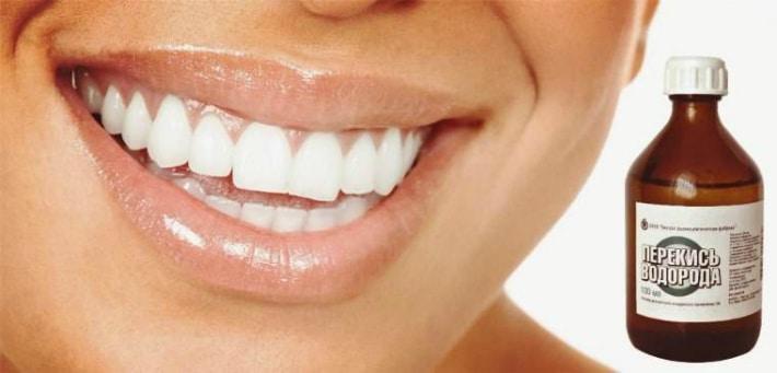 Перекись водорода для отбеливания зубов