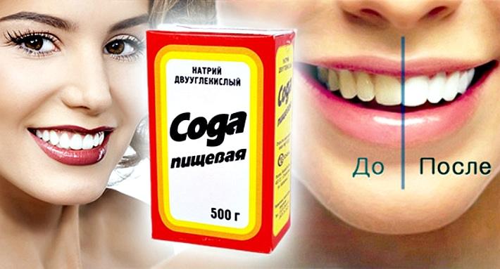 Соду для отбеливания зубов