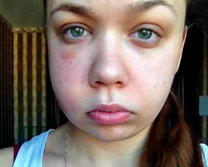 Отек щеки после удаления зуба: почему и что делать?