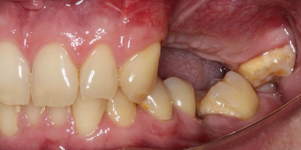 Зубов нет