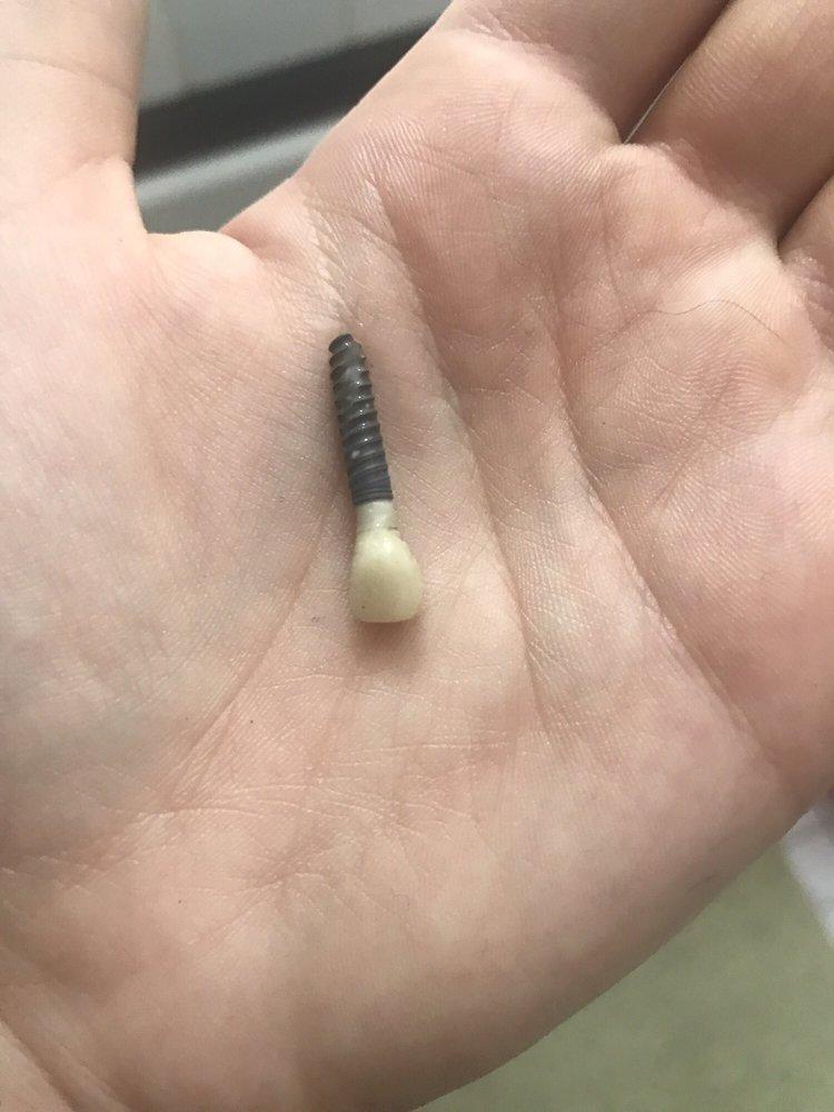 Отторженый имплант