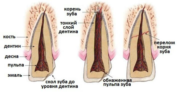 перелом зубов