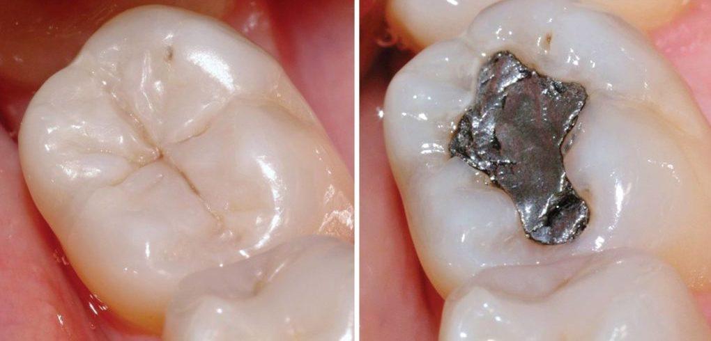 Пломбированный зуб