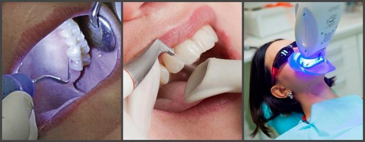 Виды борьбы с почерневшими зубами