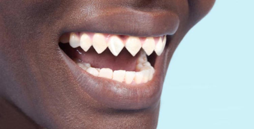 Сточился передний зуб что делать