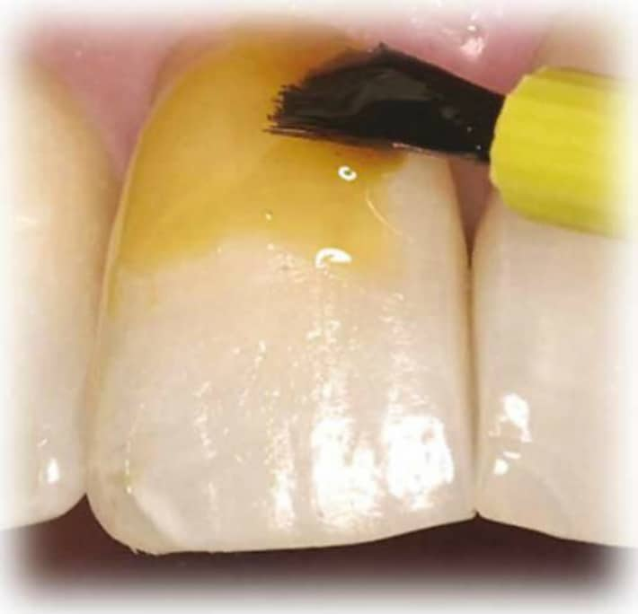 Фтор восстанавливает минеральную структуру зубной ткани
