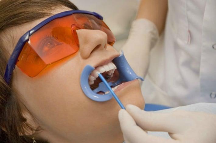 Нанесении фторлака на зубы