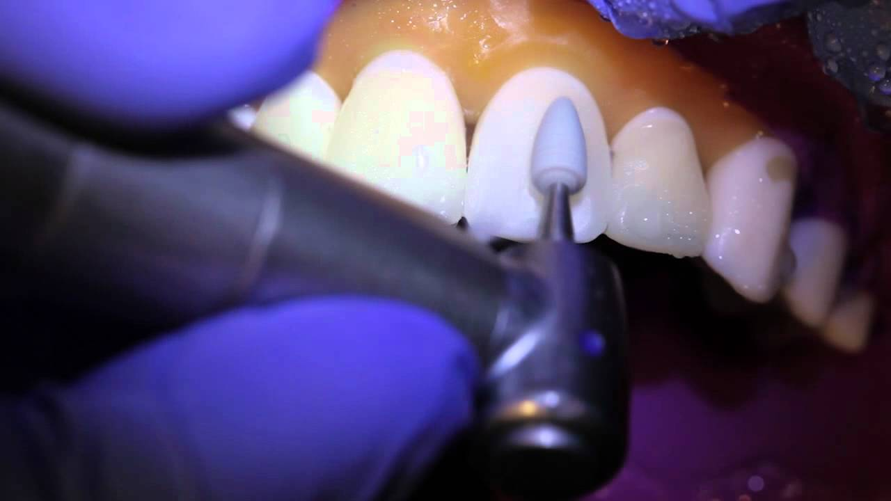 Полировка зуба