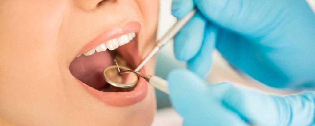 Когда снимают швы после имплантации зубов?