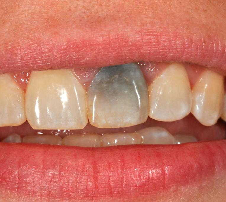 Причины потемнения зубного протеза