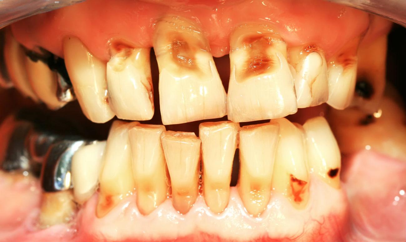 Материалы для имплантации эмали зубов