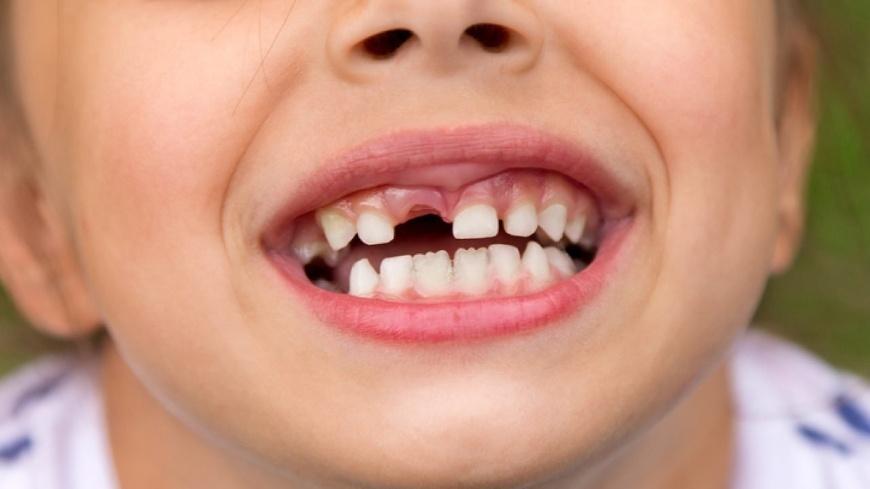 Зубное протезирование детям