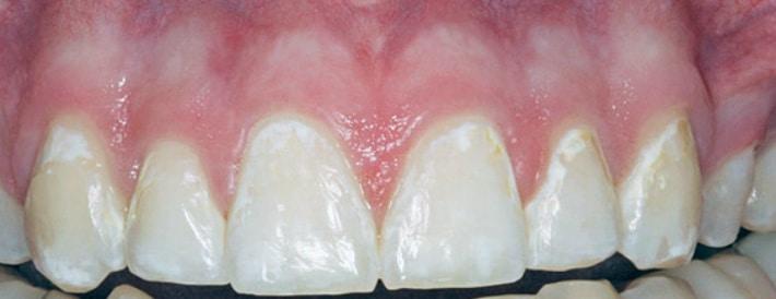 Меловидные пятна на зубах