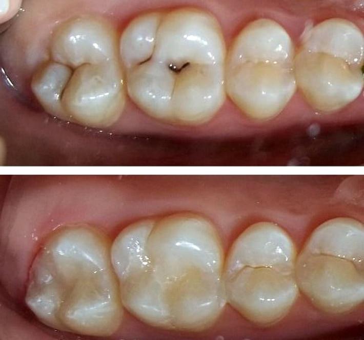 Фиссурный кариес зубов