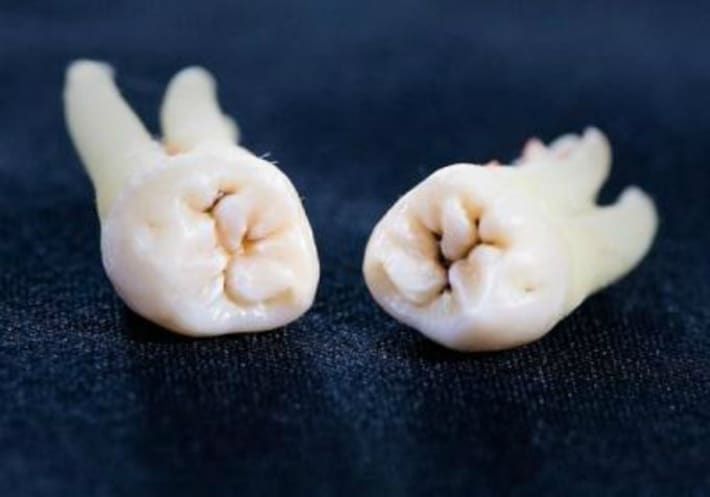 Правила и рекомендации после удаления зуба