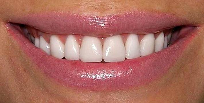 Правильная чистка зубов до завтрака или после