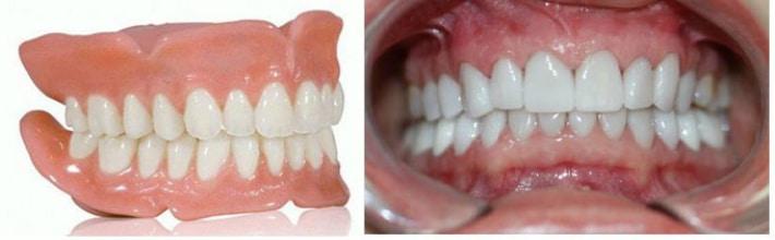 Ортогнатический прикус зубов