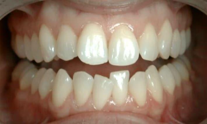 Кариес при скученности зубов
