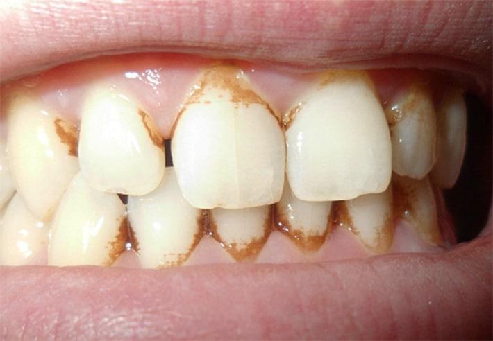 Налёт в пришеечной зоне зуба