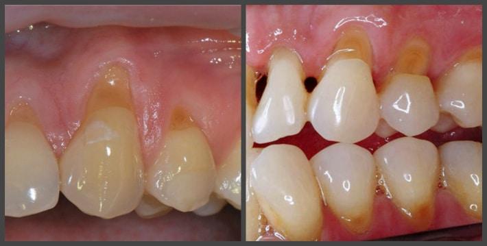 Клиновидный дефект зубов и пришеечный кариес