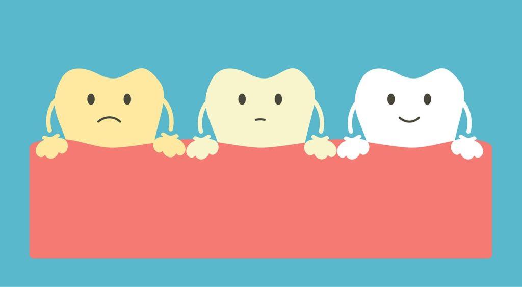 Зуб белеет