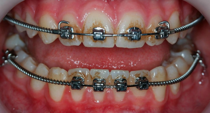 Очищение зубов до естественного оттенка
