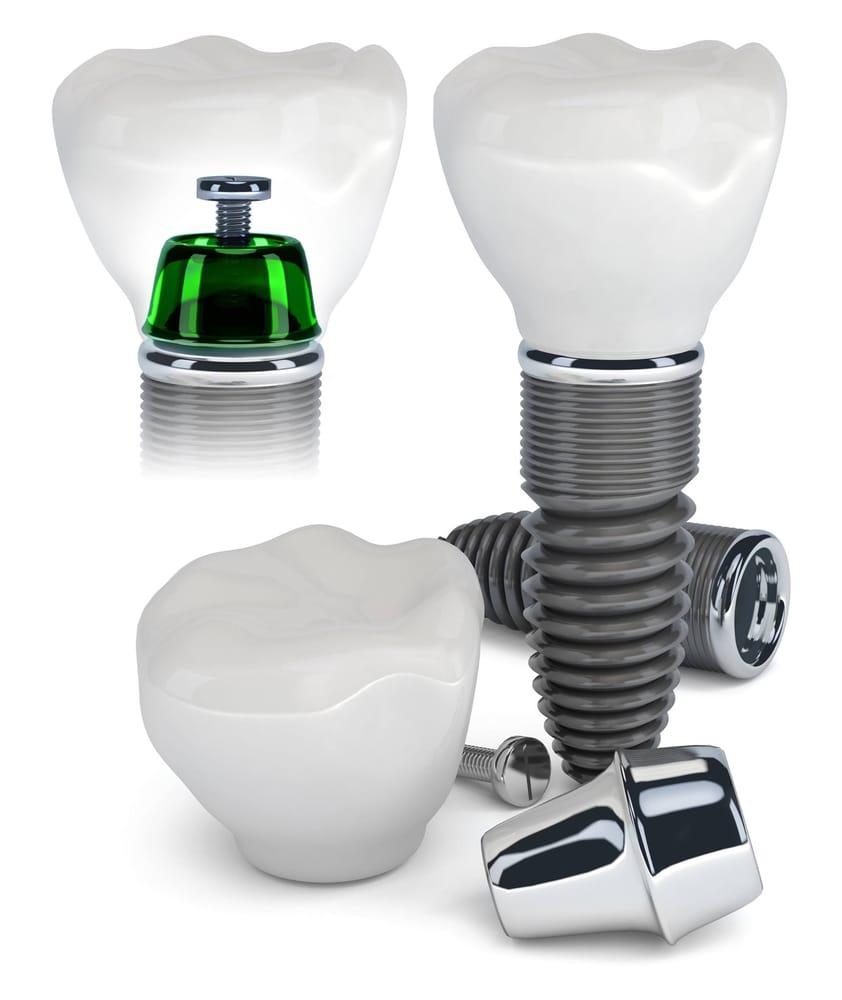 Рейтинг зубных имплантов в 2019 году