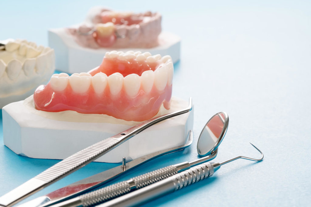 Имплантация зубов без обточки: какие существуют методы и технологии
