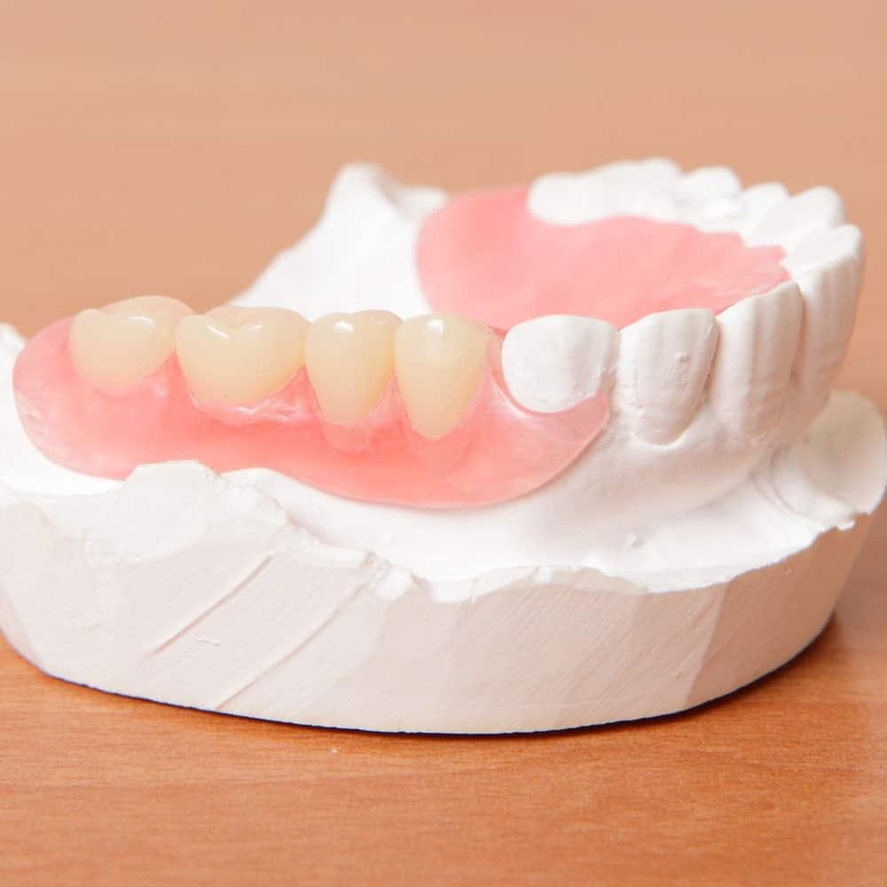 Зачем нужны временные зубные протезы?