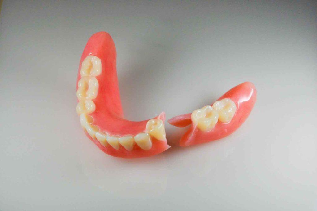 Как ремонтируют зубные протезы?