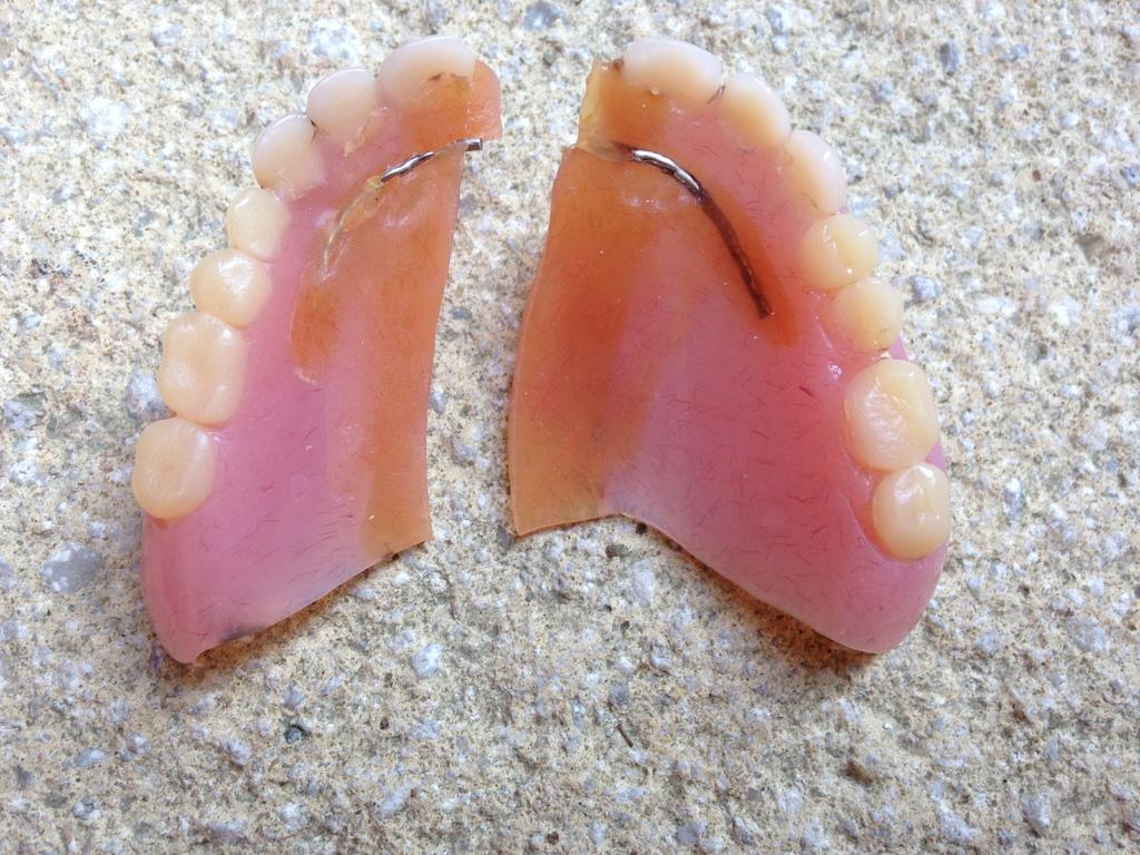 Сломанный зубной протез