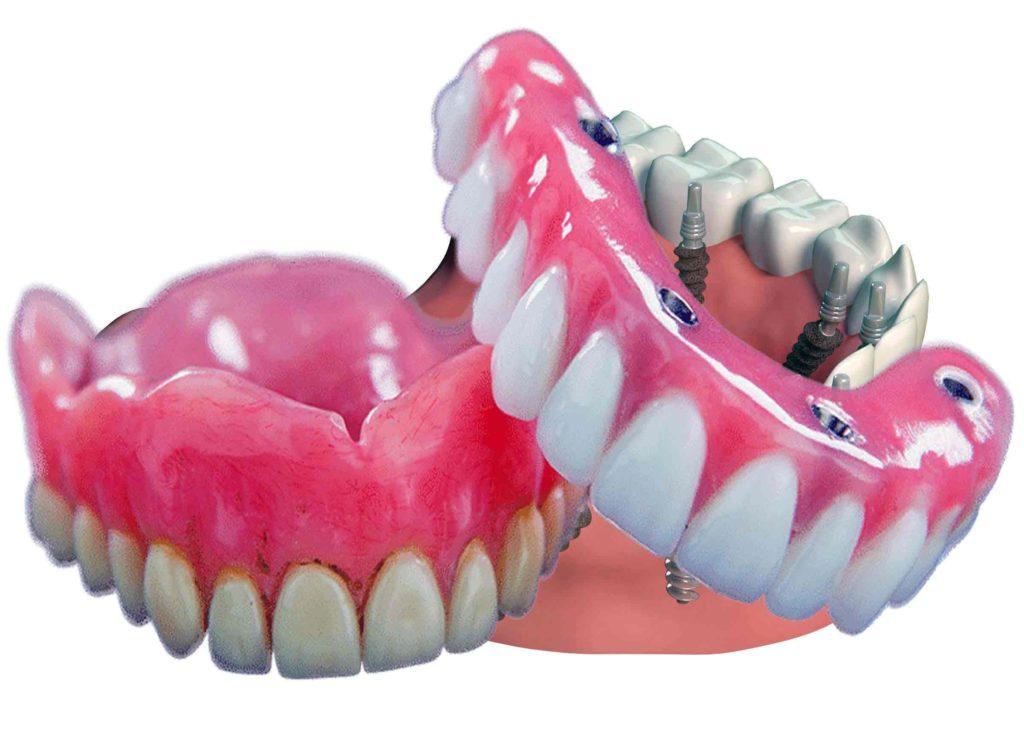 Как долго устанавливают импланты зубов