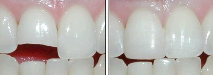 Фотополимерное наращивание зубов