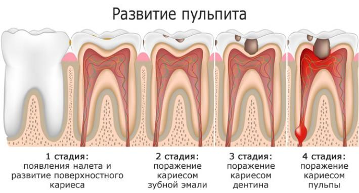 Пульпит зуба: фото, симптомы, лечение, причины, стадии и опасность