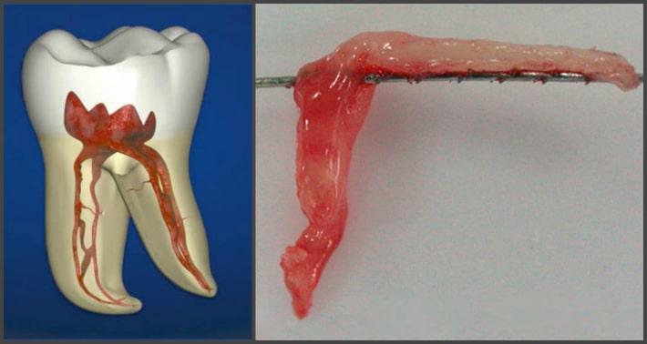 Нервно-сосудистый пучок зуба