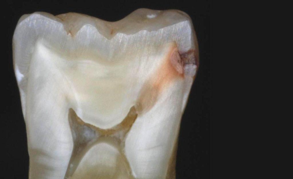 Причины возникновения и признаки пульпита зуба