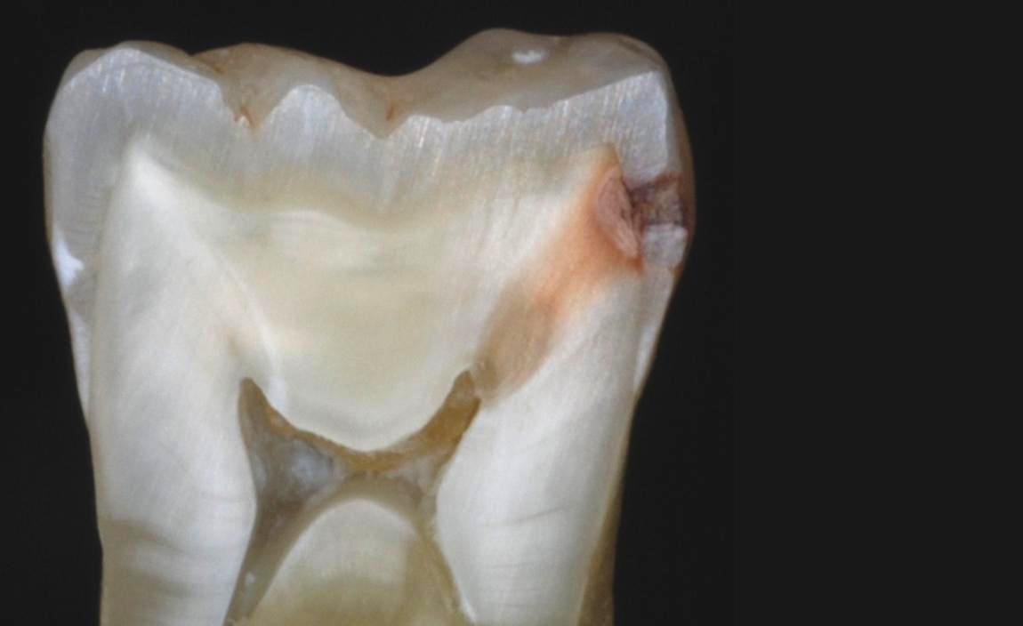 Зуб с пульпитом