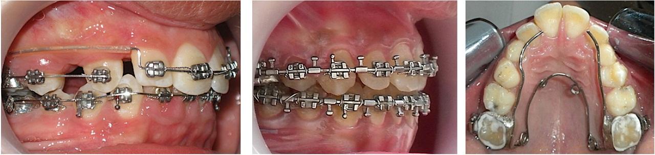 Разнообразие зубных скобок