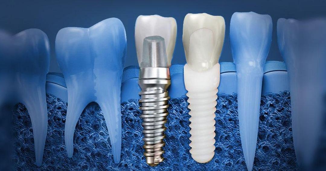 Разные материалы для имплантов