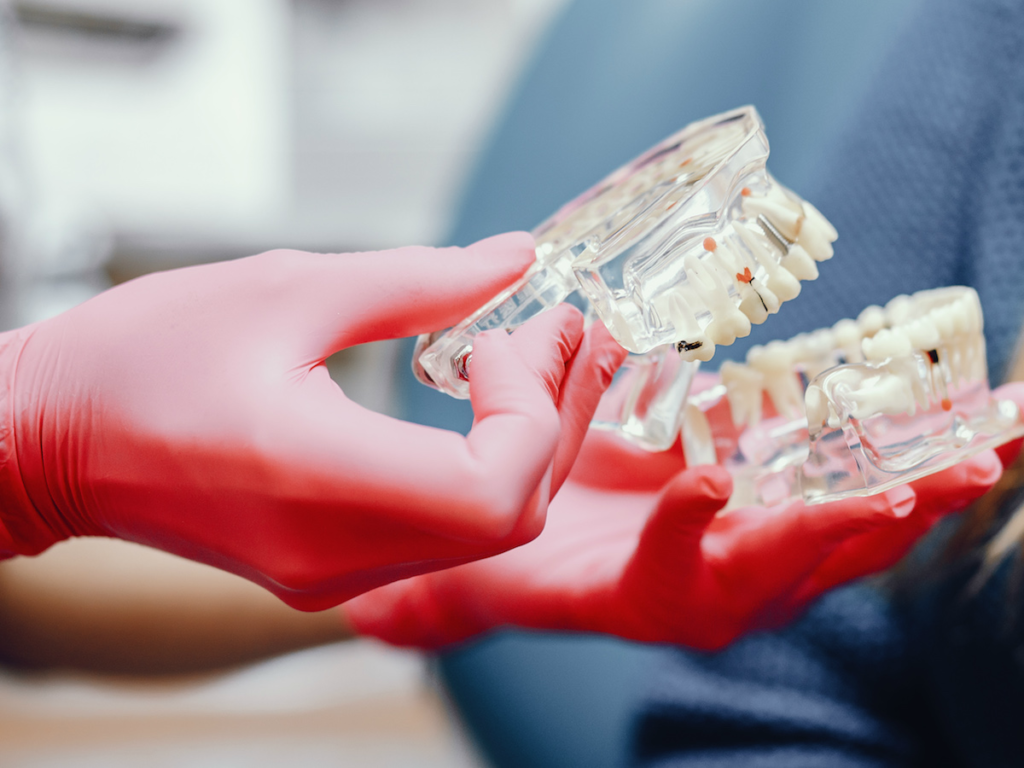 Чем отличаются дорогие зубные импланты от дешевых
