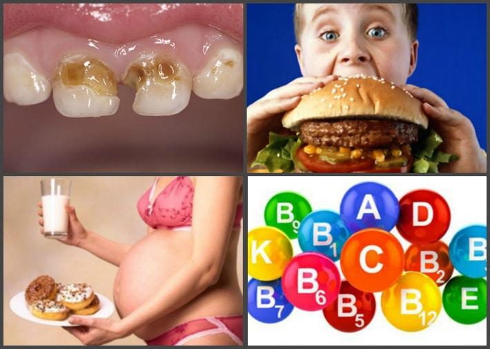 причины крошения зубов у детей