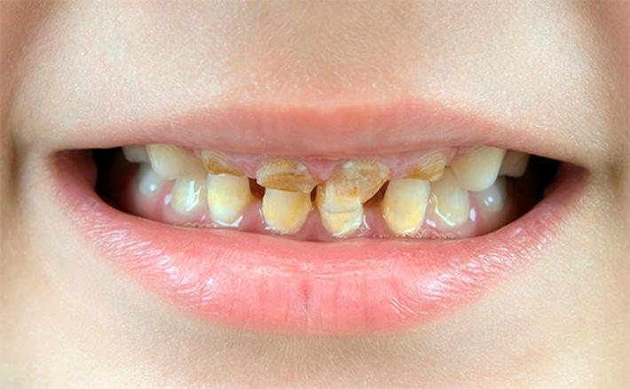 Причины разрушения и крошения зубов у детей и взрослых