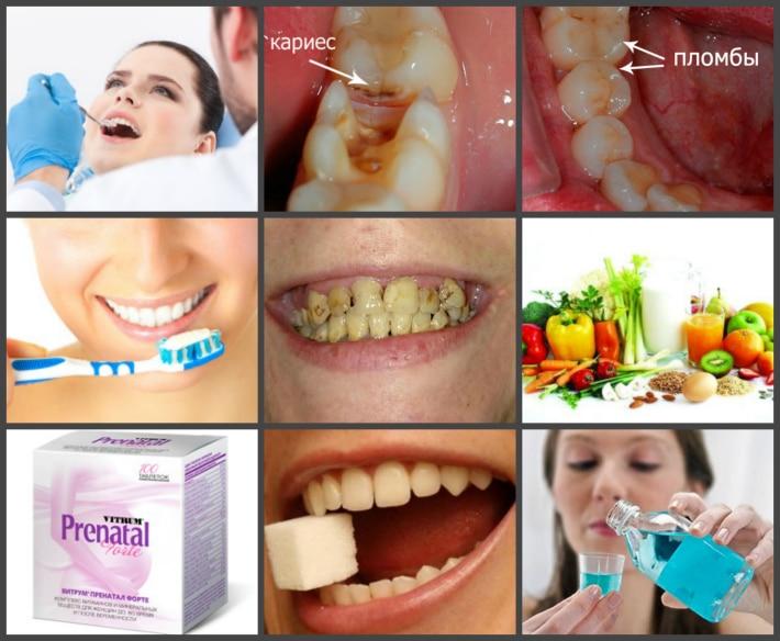 профилактика крошения зубов