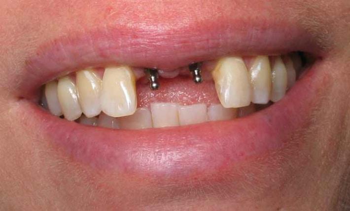 Сколько заживает десна после имплантации зуба